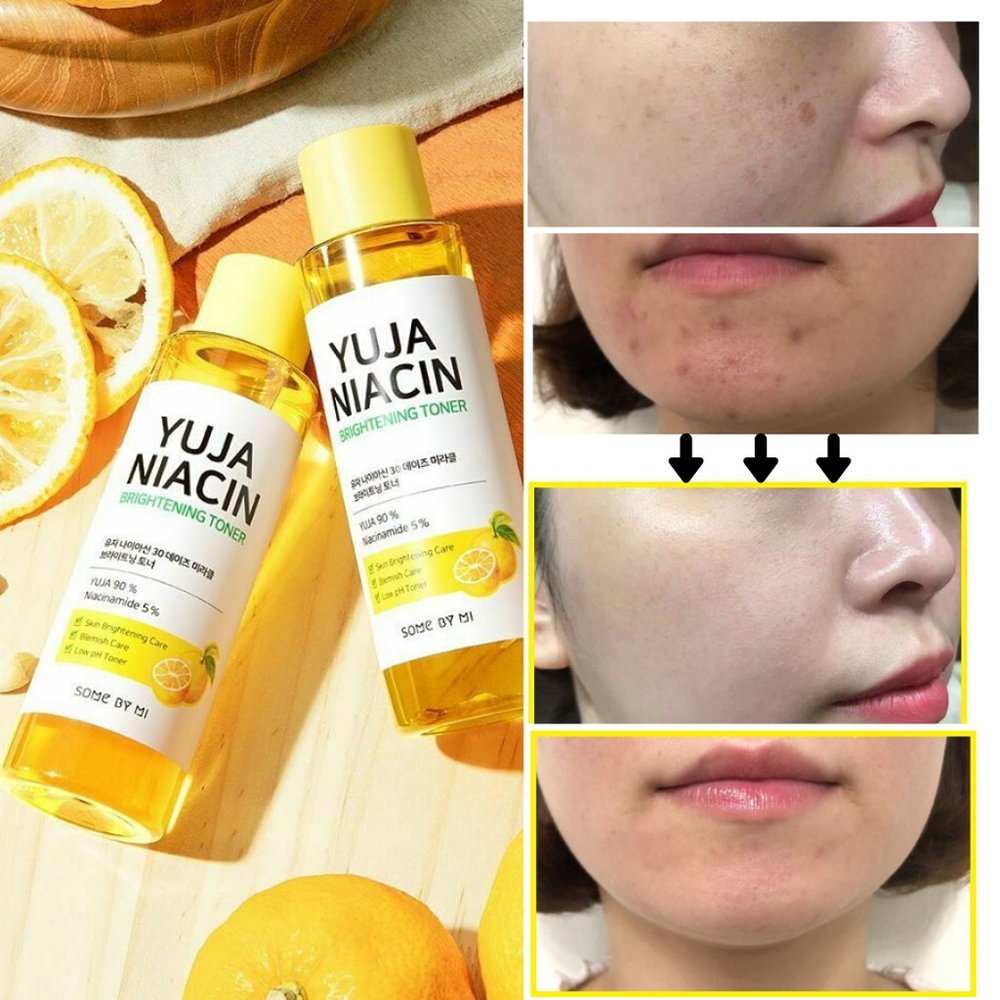 Somebymi Yuja Niacin Brightening Toner 150 ml_2