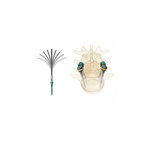 """z"" minimally invasive spine technology solution"