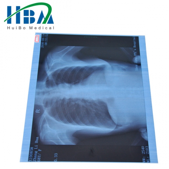 Medical x-ray dry film