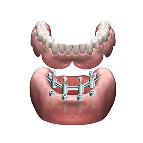 Removable Dentures on Implants_2